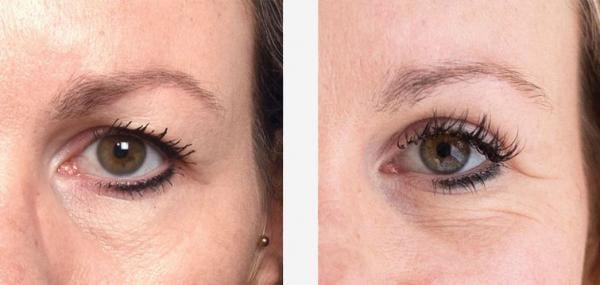 ooglicorrectie-voor-na